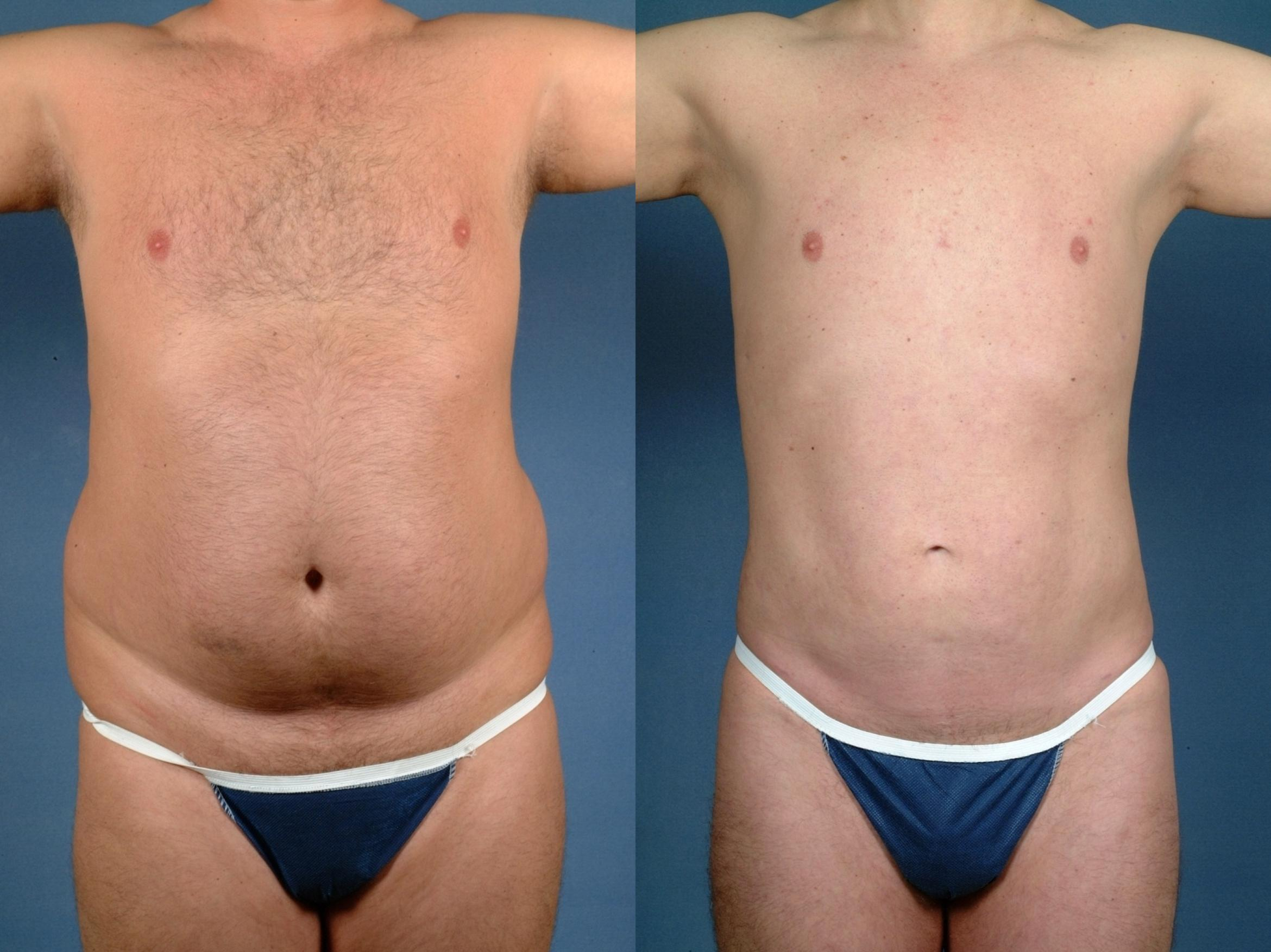 Liposuction for Men Case 722 Before & After Front | Louisville & Lexington, KY | CaloAesthetics® Plastic Surgery Center