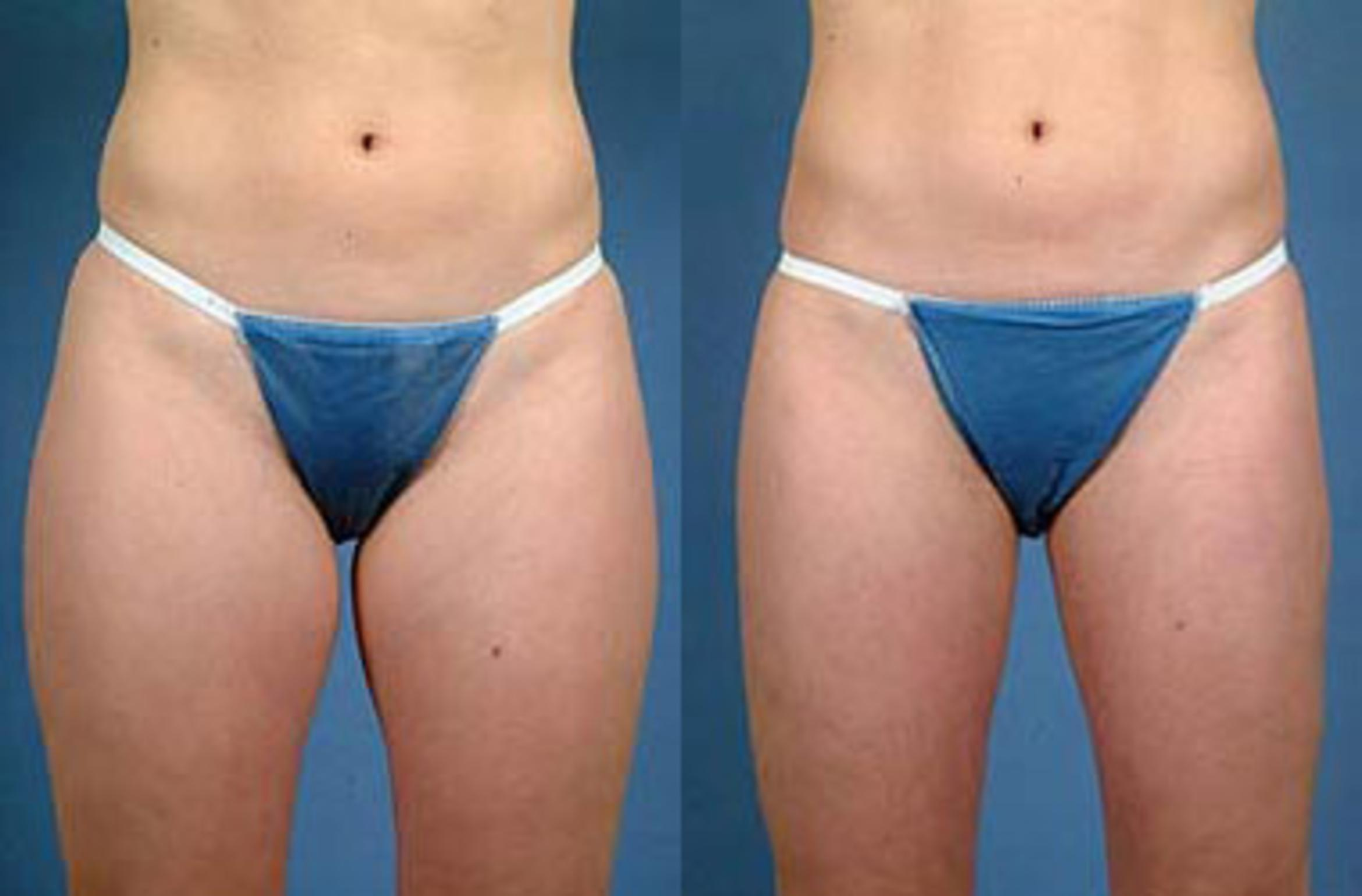 Liposuction for Women Case 116 Before & After View #1 | Louisville, KY | CaloAesthetics® Plastic Surgery Center