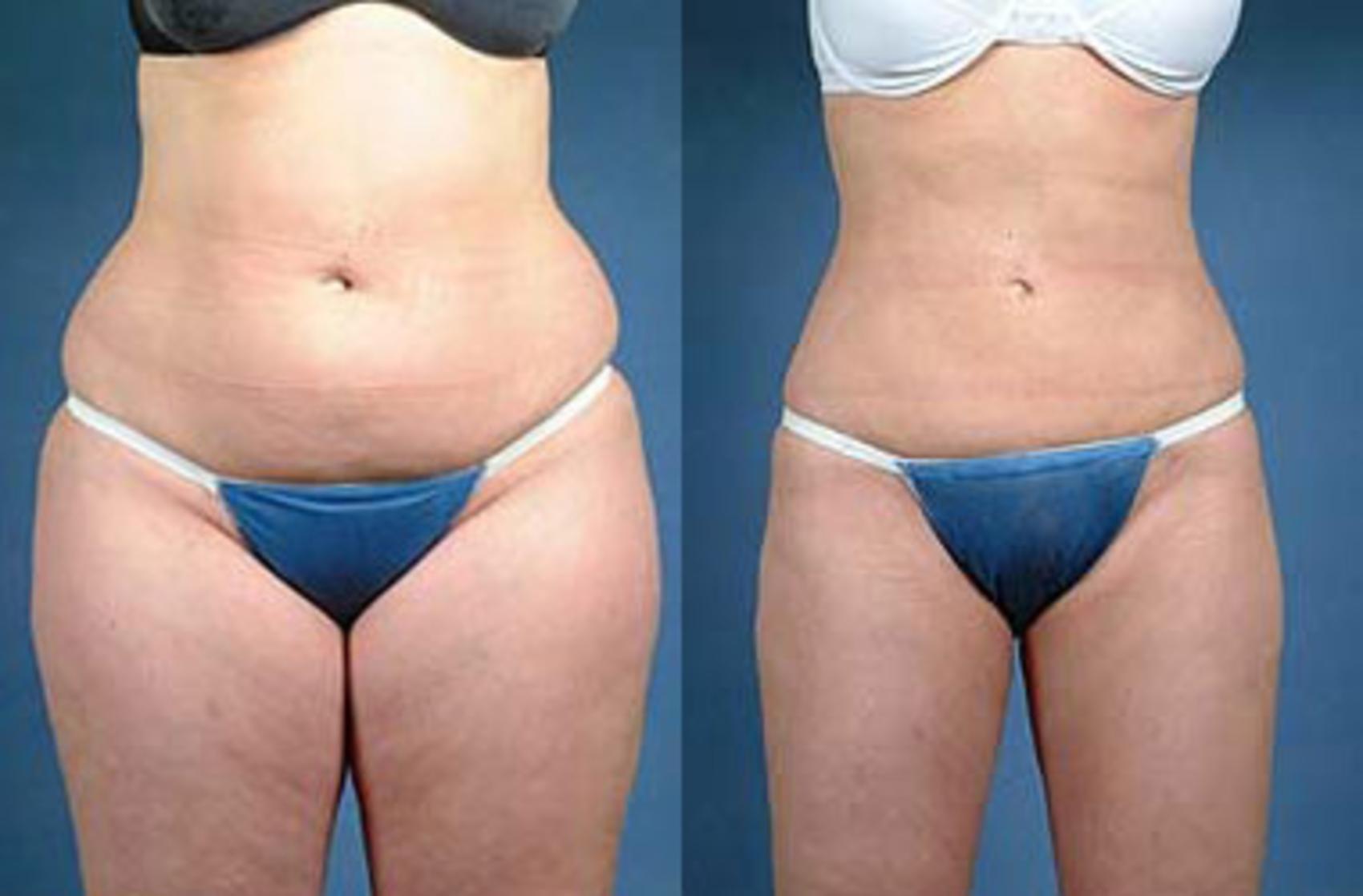 New York Liposuction