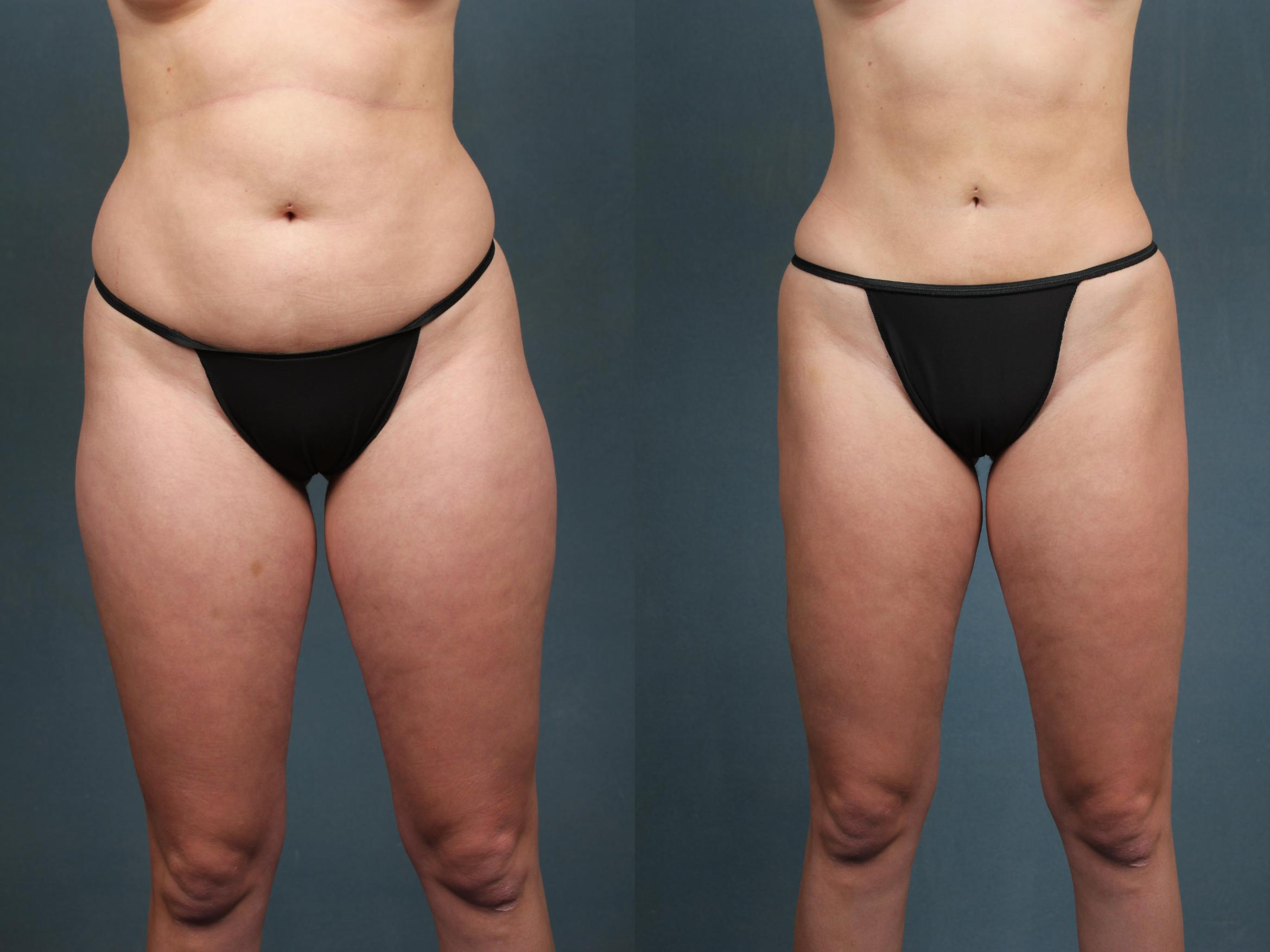 Liposuction for Women Case 593 Before & After View #1 | Louisville, KY | CaloAesthetics® Plastic Surgery Center