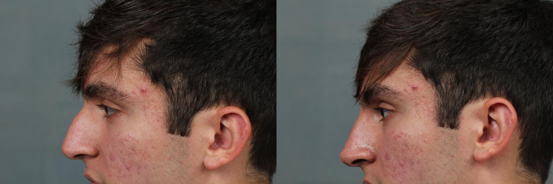 Liquid Rhinoplasty Case 650 Before & After Left Side | Louisville, KY | CaloAesthetics® Plastic Surgery Center