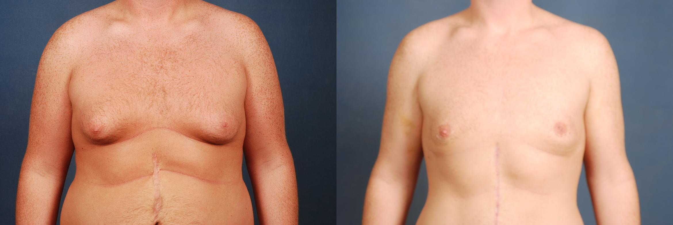 Male Breast Reduction Case 724 Before & After Front | Louisville, KY | CaloAesthetics® Plastic Surgery Center