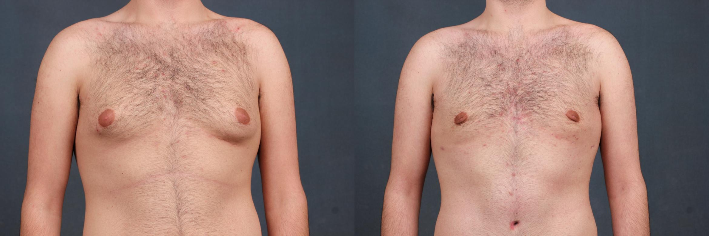 Male Breast Reduction Case 729 Before & After Front | Louisville, KY | CaloAesthetics® Plastic Surgery Center