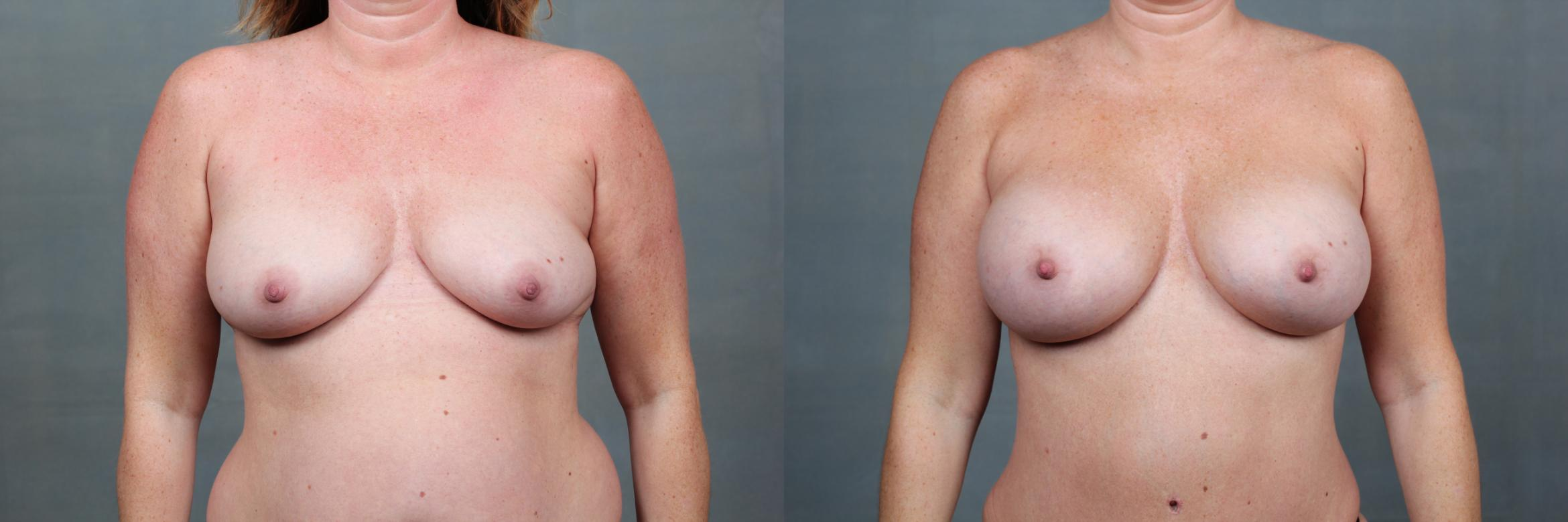 Mommy Makeover Case 741 Before & After Front | Louisville, KY | CaloAesthetics® Plastic Surgery Center