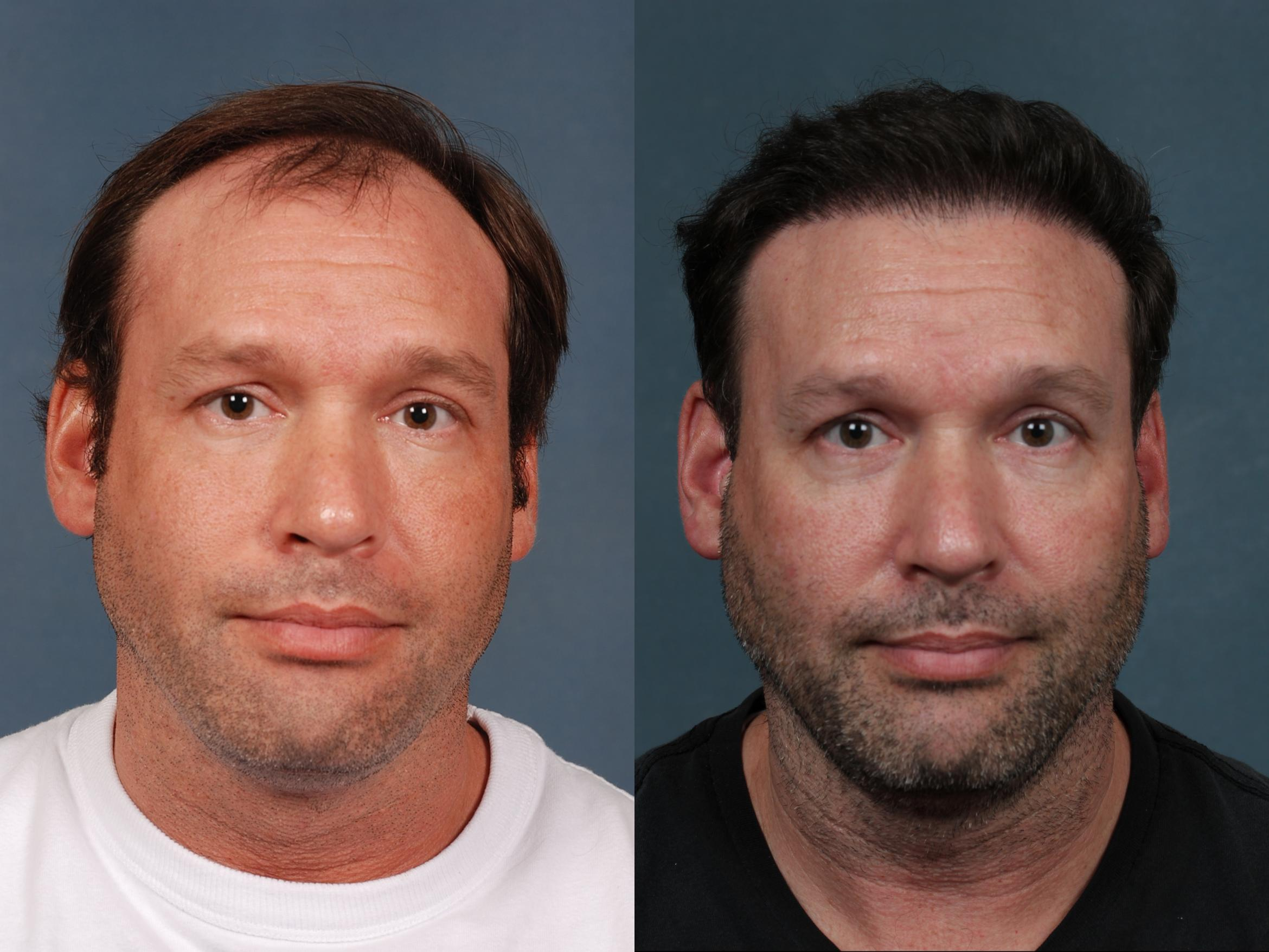 NeoGraft Hair Transplant Case 710 Before & After Front | Louisville & Lexington, KY | CaloAesthetics® Plastic Surgery Center