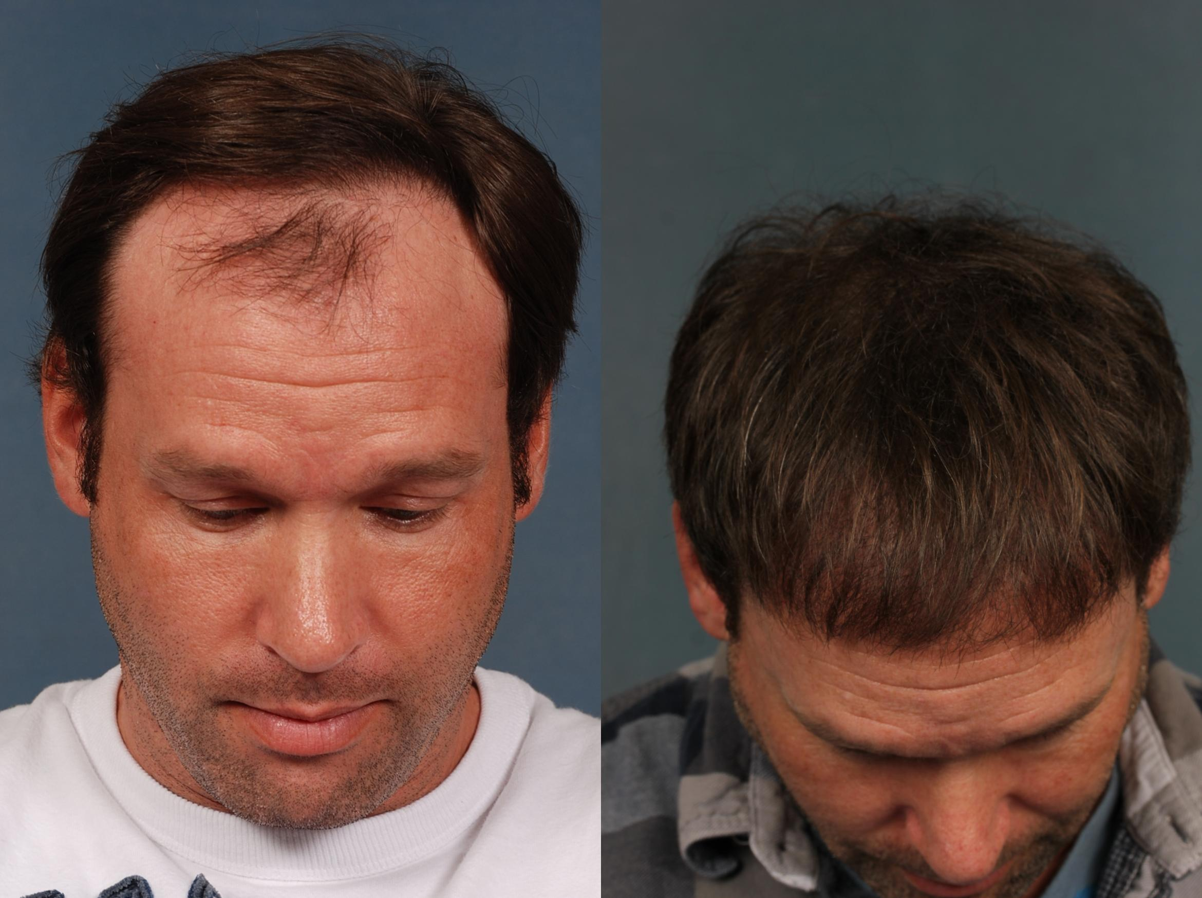 NeoGraft Hair Transplant Case 710 Before & After Top of Head | Louisville & Lexington, KY | CaloAesthetics® Plastic Surgery Center