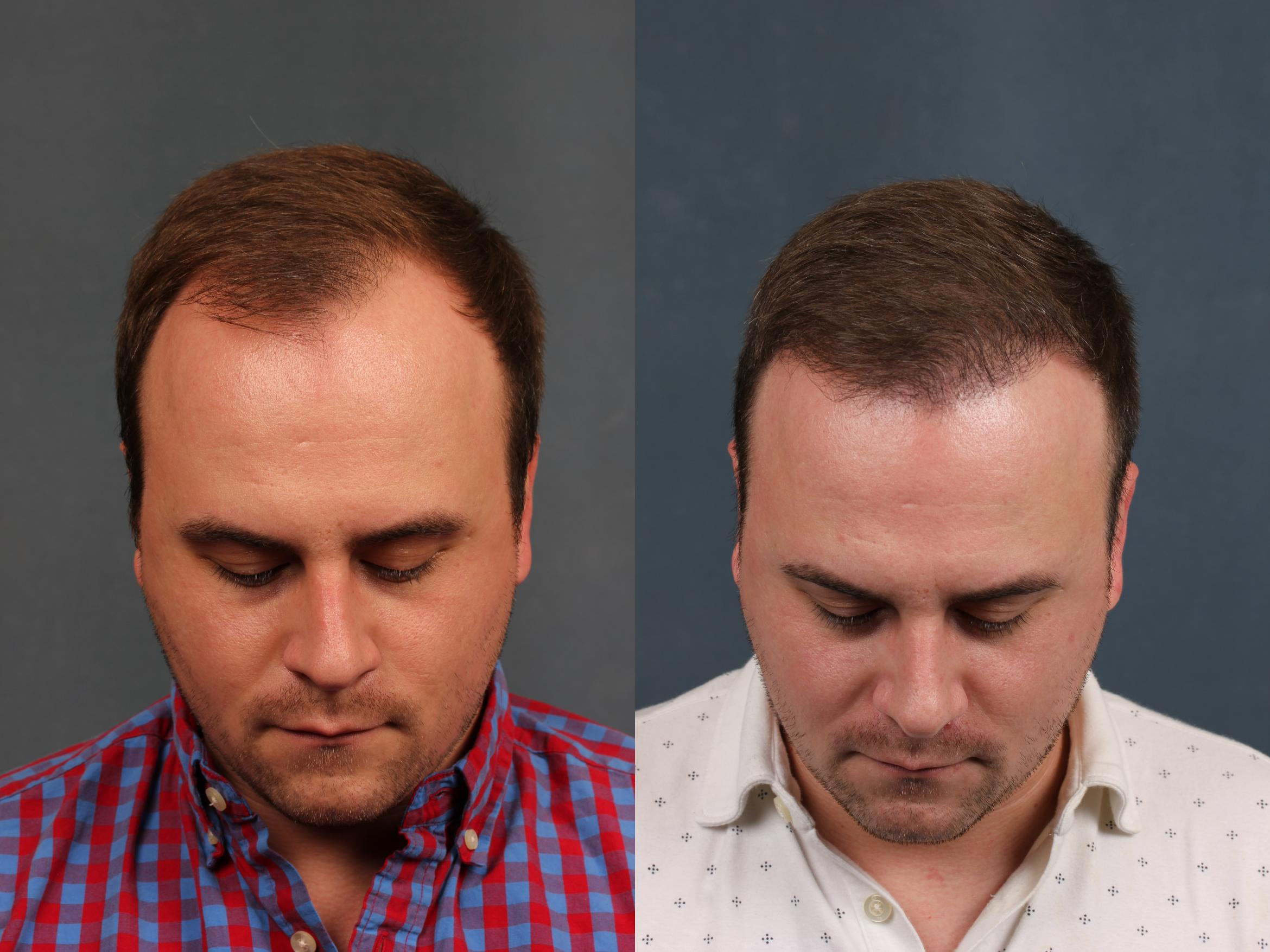 NeoGraft Hair Transplant Case 712 Before & After Front | Louisville & Lexington, KY | CaloAesthetics® Plastic Surgery Center