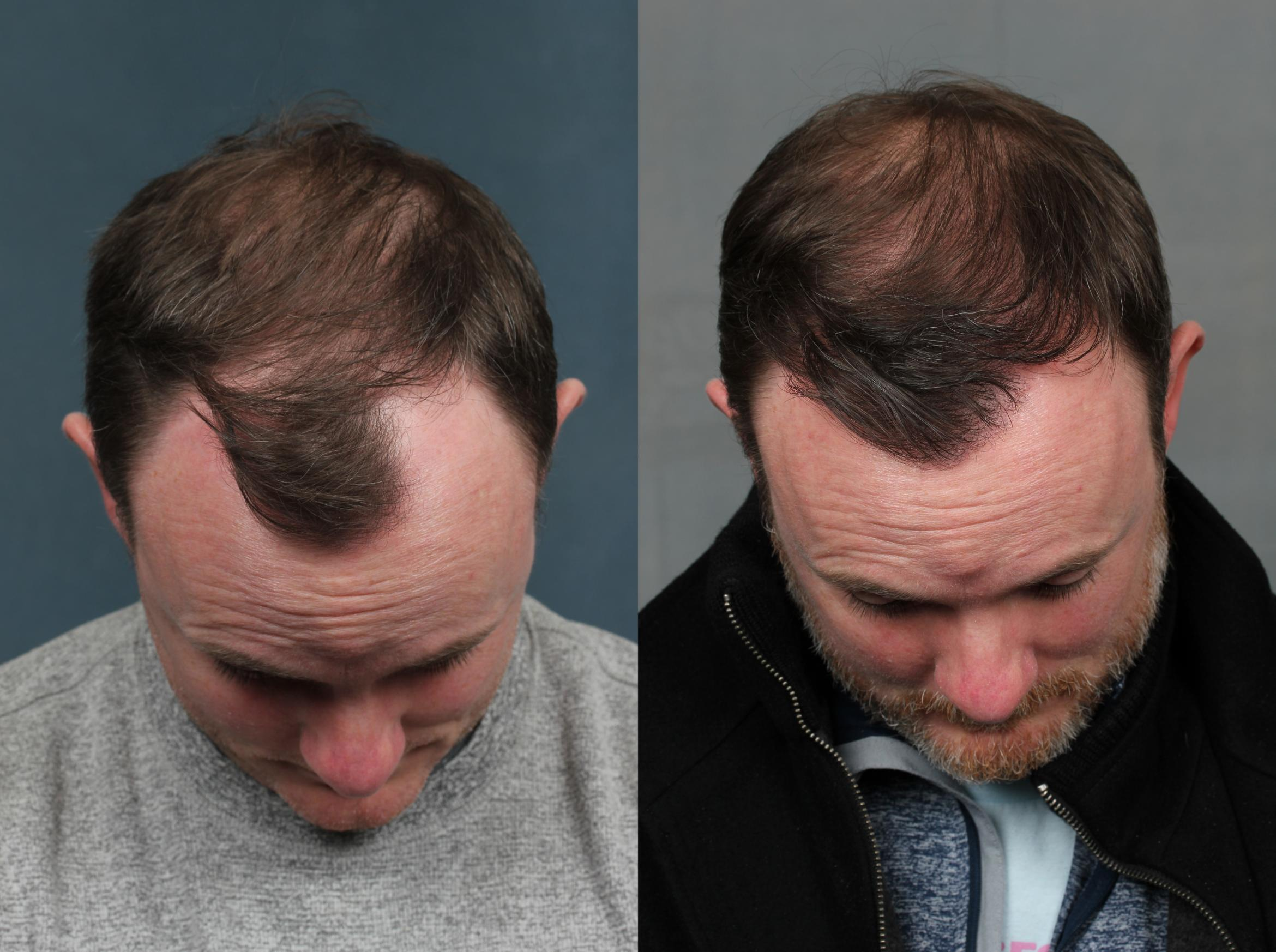NeoGraft Hair Transplant Case 713 Before & After Front | Louisville & Lexington, KY | CaloAesthetics® Plastic Surgery Center