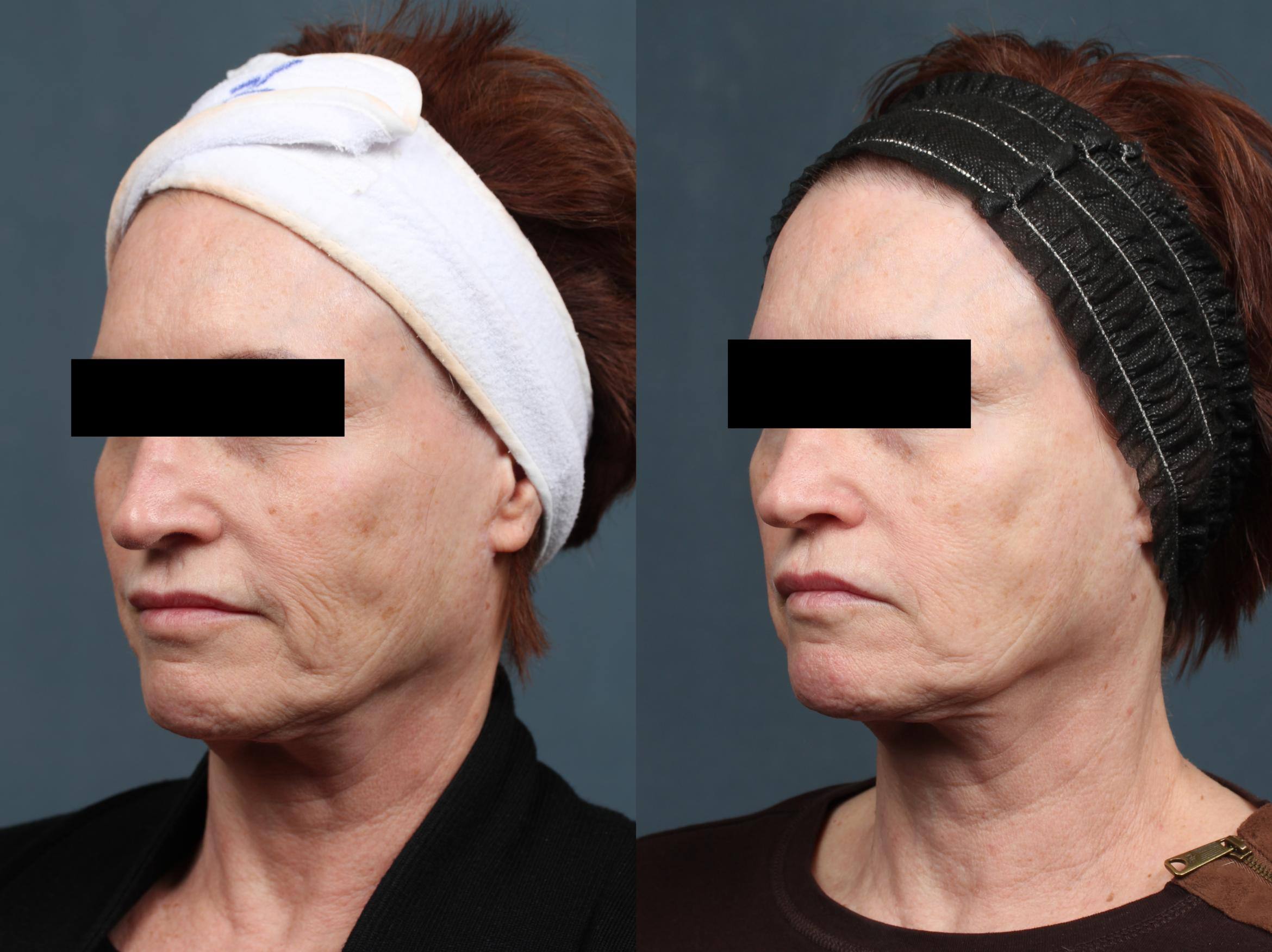 PICO Genesis Laser Treatment Case 682 Before & After Left Oblique | Louisville, KY | CaloSpa® Rejuvenation Center