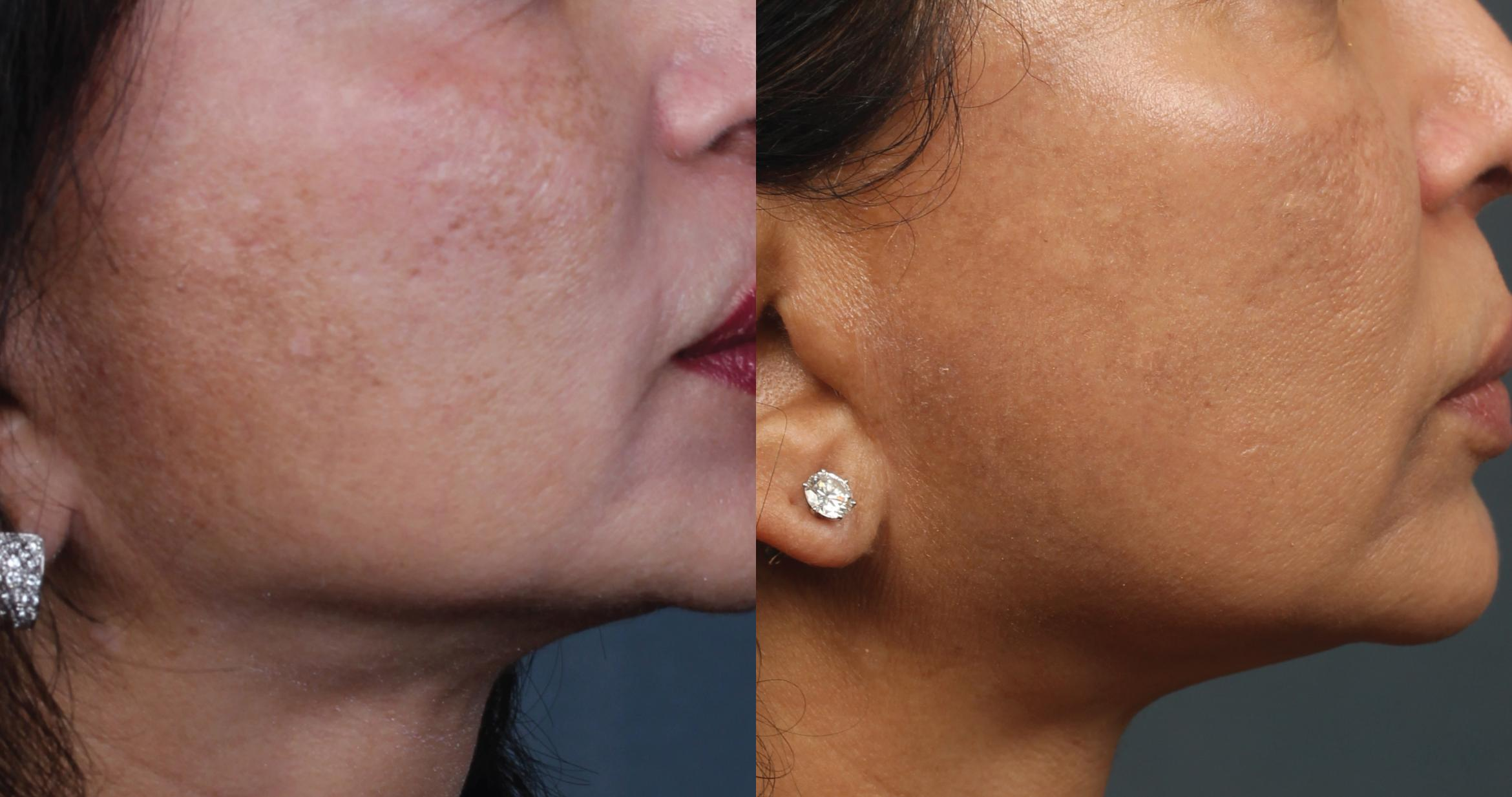 PICO Genesis Laser Treatment Case 683 Before & After Right Side | Louisville, KY | CaloSpa® Rejuvenation Center