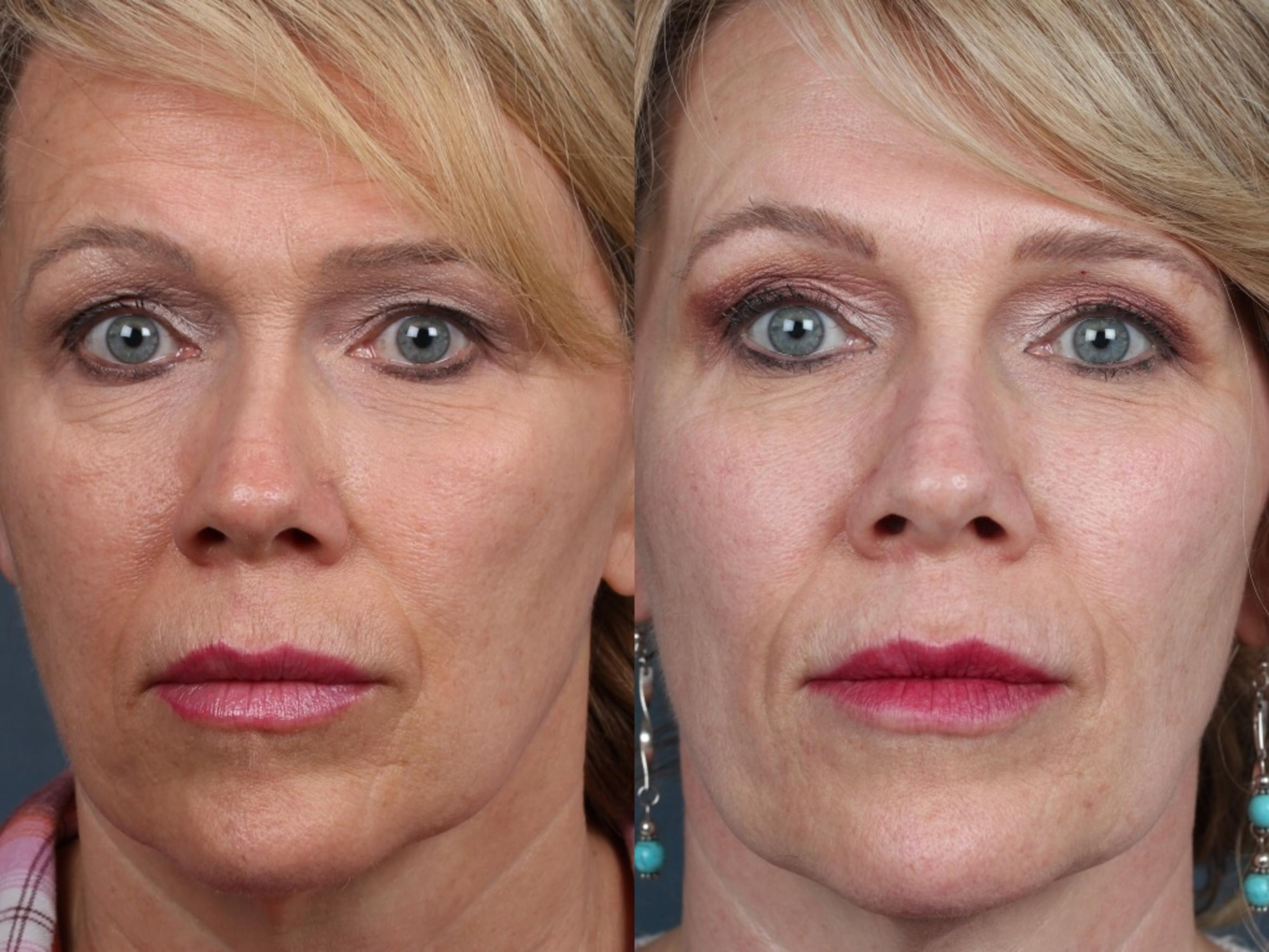 PICO Genesis Laser Treatment Case 688 Before & After Front | Louisville, KY | CaloSpa® Rejuvenation Center