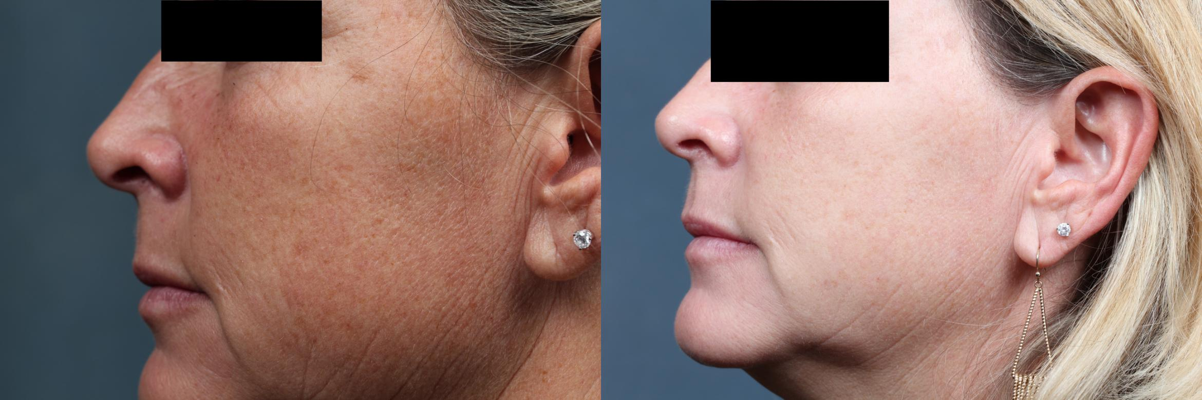 PICO Genesis Laser Treatment Case 700 Before & After Left Side | Louisville, KY | CaloSpa® Rejuvenation Center