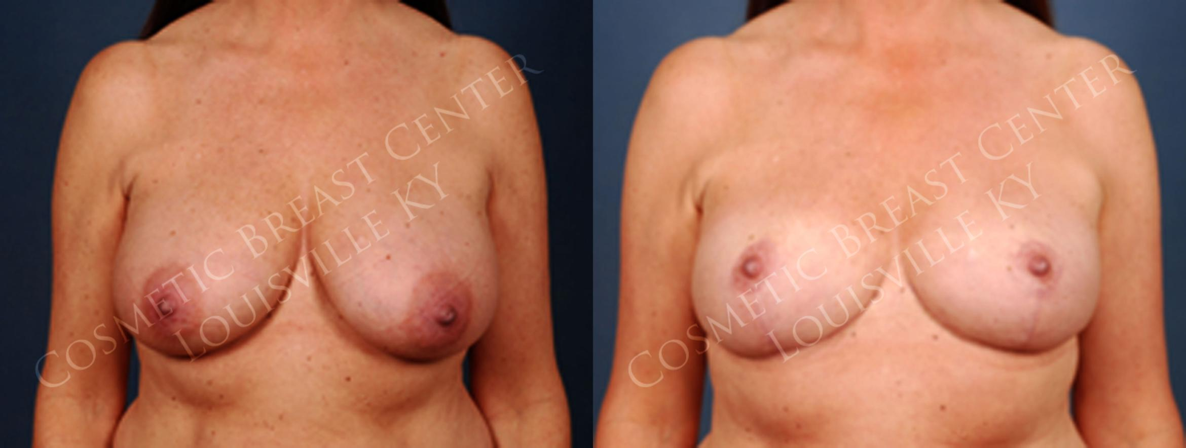 Reduction Case 223 Before & After View #1 | Louisville, KY | CaloAesthetics® Plastic Surgery Center