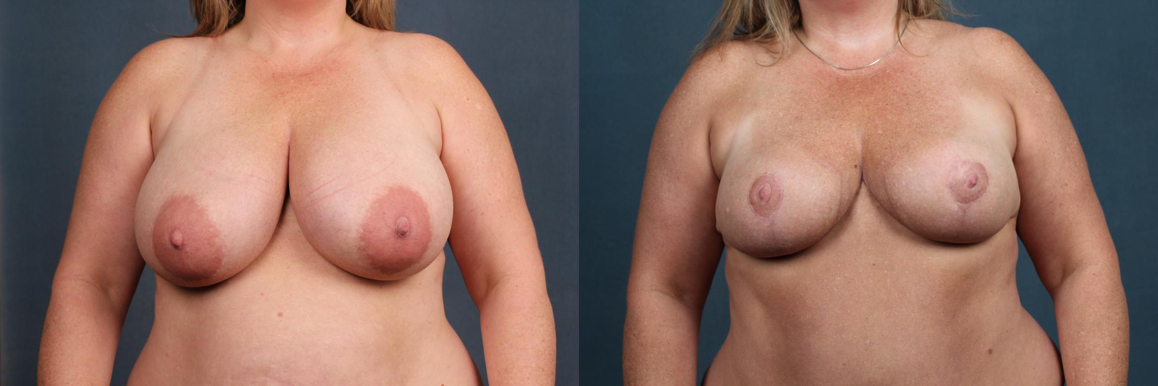 Reduction Case 443 Before & After View #1 | Louisville, KY | CaloAesthetics® Plastic Surgery Center