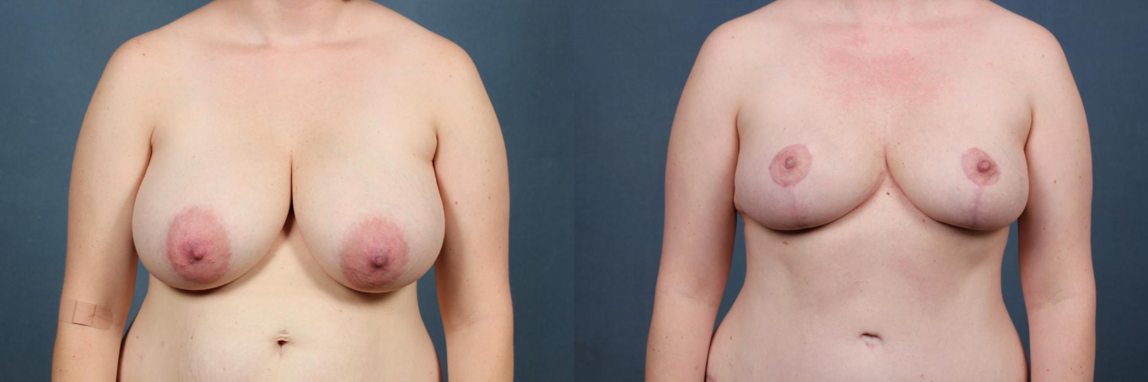 Reduction Case 445 Before & After View #1 | Louisville & Lexington, KY | CaloAesthetics® Plastic Surgery Center