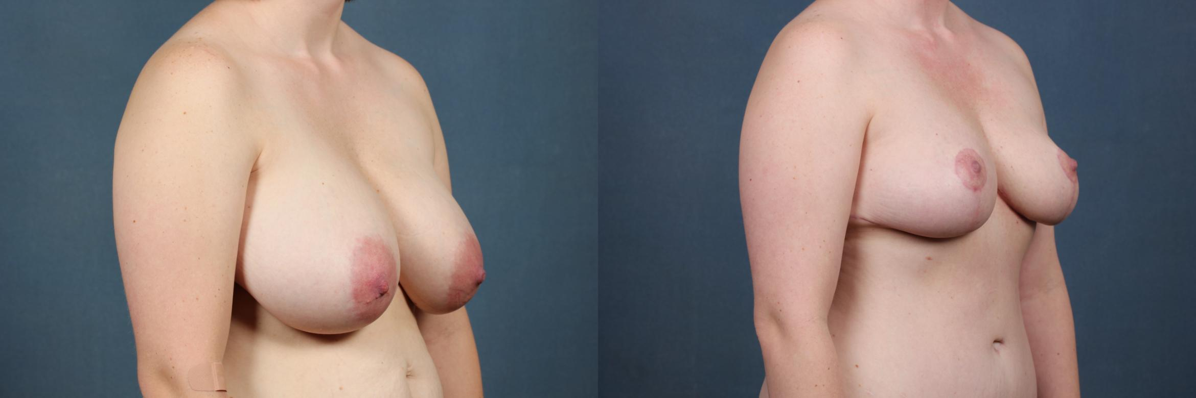 Reduction Case 445 Before & After View #3 | Louisville & Lexington, KY | CaloAesthetics® Plastic Surgery Center