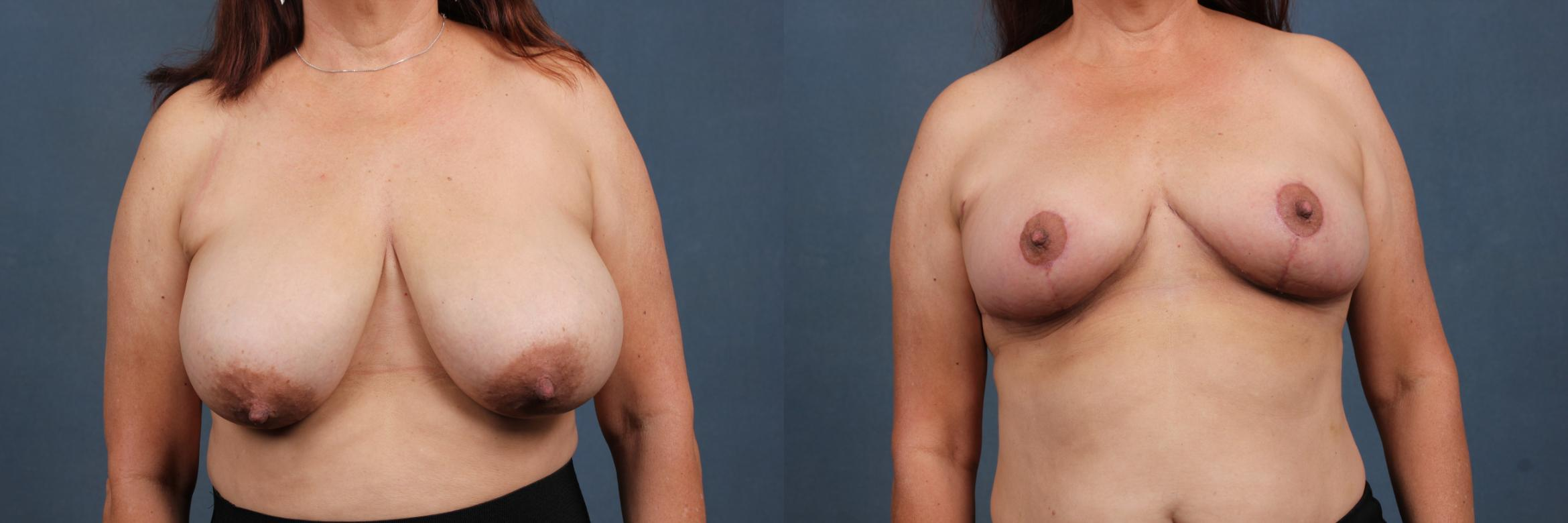 Reduction Case 447 Before & After View #1 | Louisville & Lexington, KY | CaloAesthetics® Plastic Surgery Center