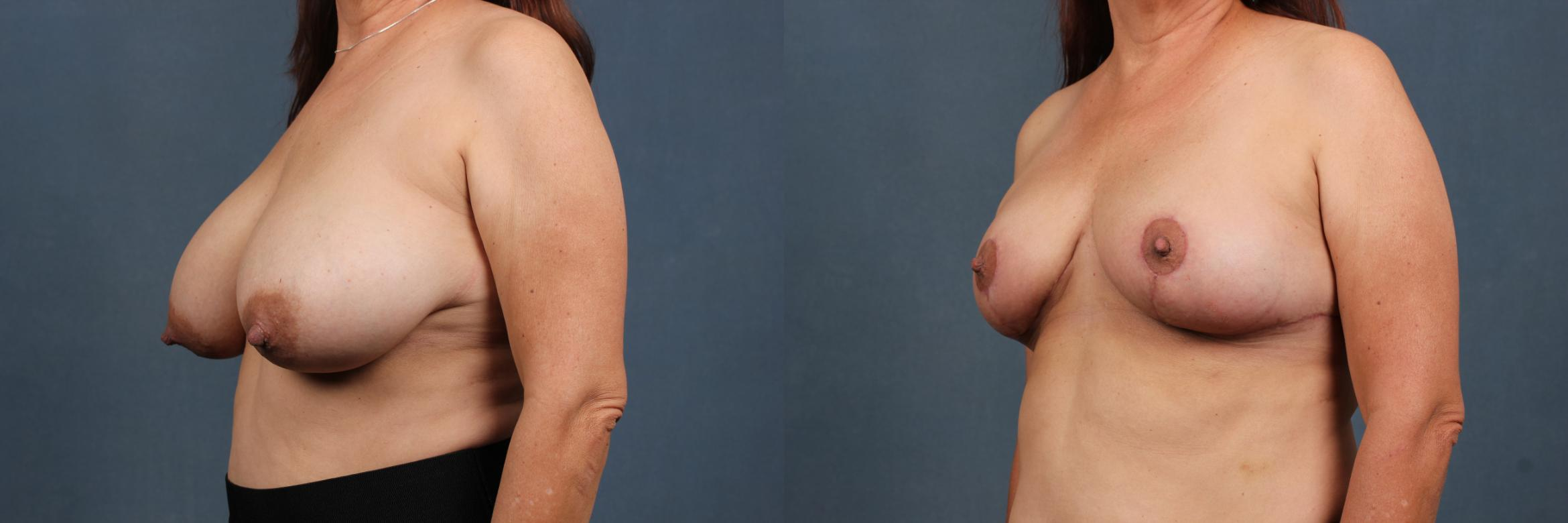 Reduction Case 447 Before & After View #2 | Louisville & Lexington, KY | CaloAesthetics® Plastic Surgery Center