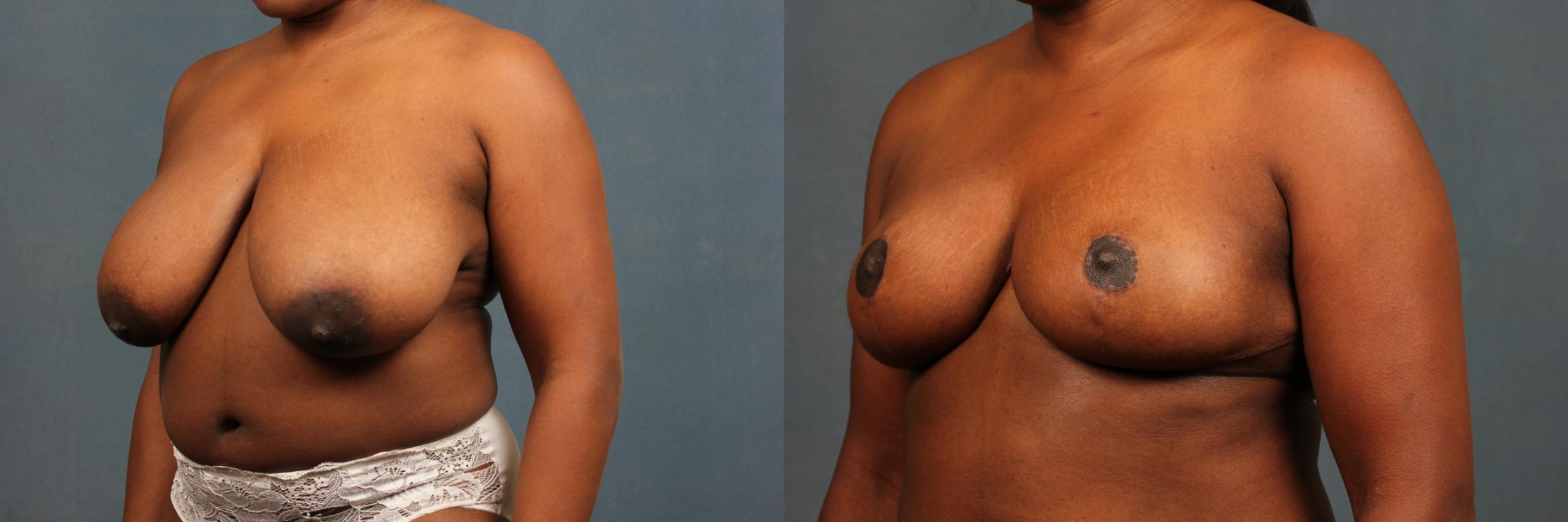Reduction Case 449 Before & After View #2 | Louisville & Lexington, KY | CaloAesthetics® Plastic Surgery Center