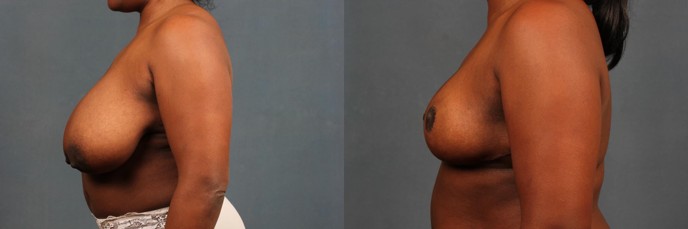 Reduction Case 449 Before & After View #3 | Louisville & Lexington, KY | CaloAesthetics® Plastic Surgery Center