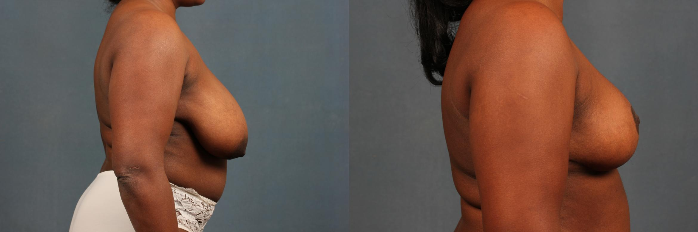 Reduction Case 449 Before & After View #5 | Louisville & Lexington, KY | CaloAesthetics® Plastic Surgery Center