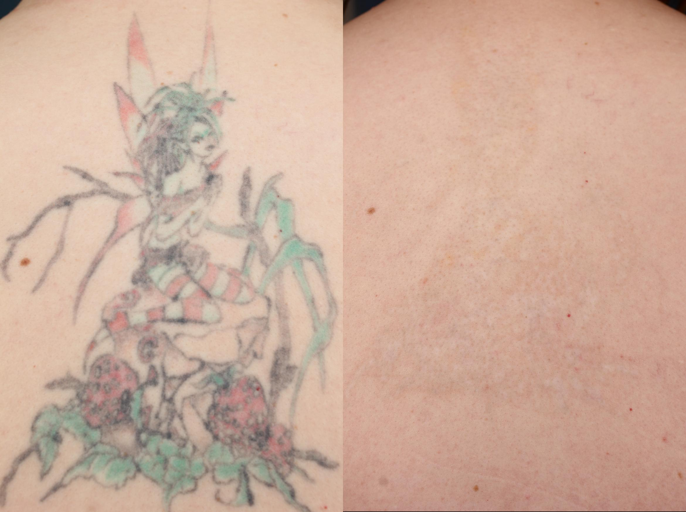 Tattoo Removal Case 679 Before & After Back | Louisville & Lexington, KY | CaloAesthetics® Plastic Surgery Center