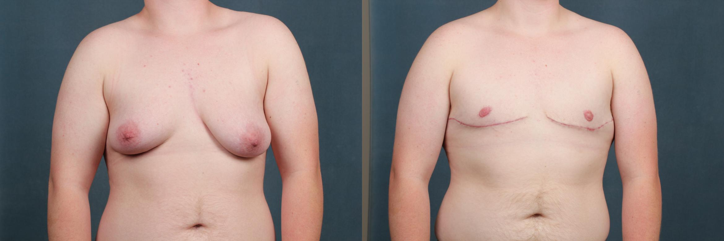 Top Surgery Case 733 Before & After Front | Louisville, KY | CaloAesthetics® Plastic Surgery Center