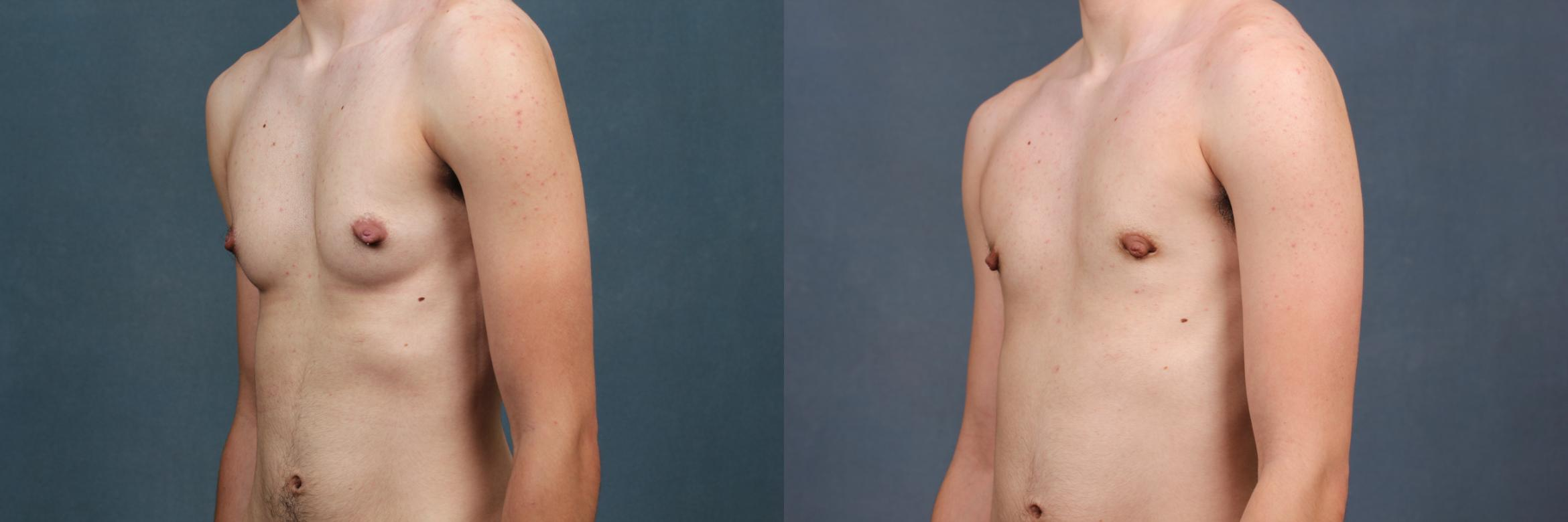 Top Surgery Case 734 Before & After Left Oblique | Louisville & Lexington, KY | CaloAesthetics® Plastic Surgery Center