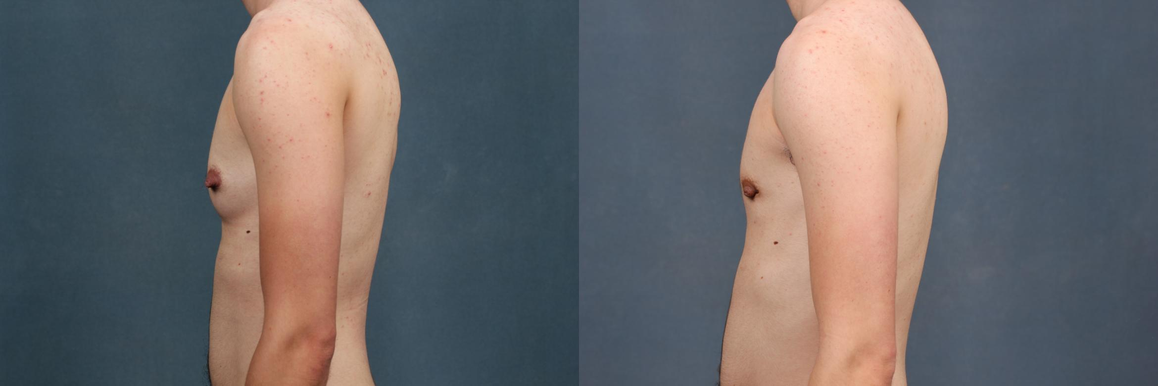 Top Surgery Case 734 Before & After Left Side | Louisville & Lexington, KY | CaloAesthetics® Plastic Surgery Center