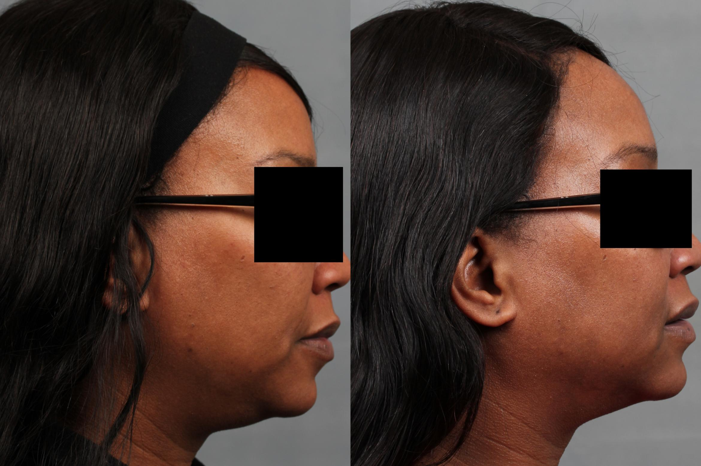 TruSculpt Case 674 Before & After Right Side | Louisville & Lexington, KY | CaloAesthetics® Plastic Surgery Center