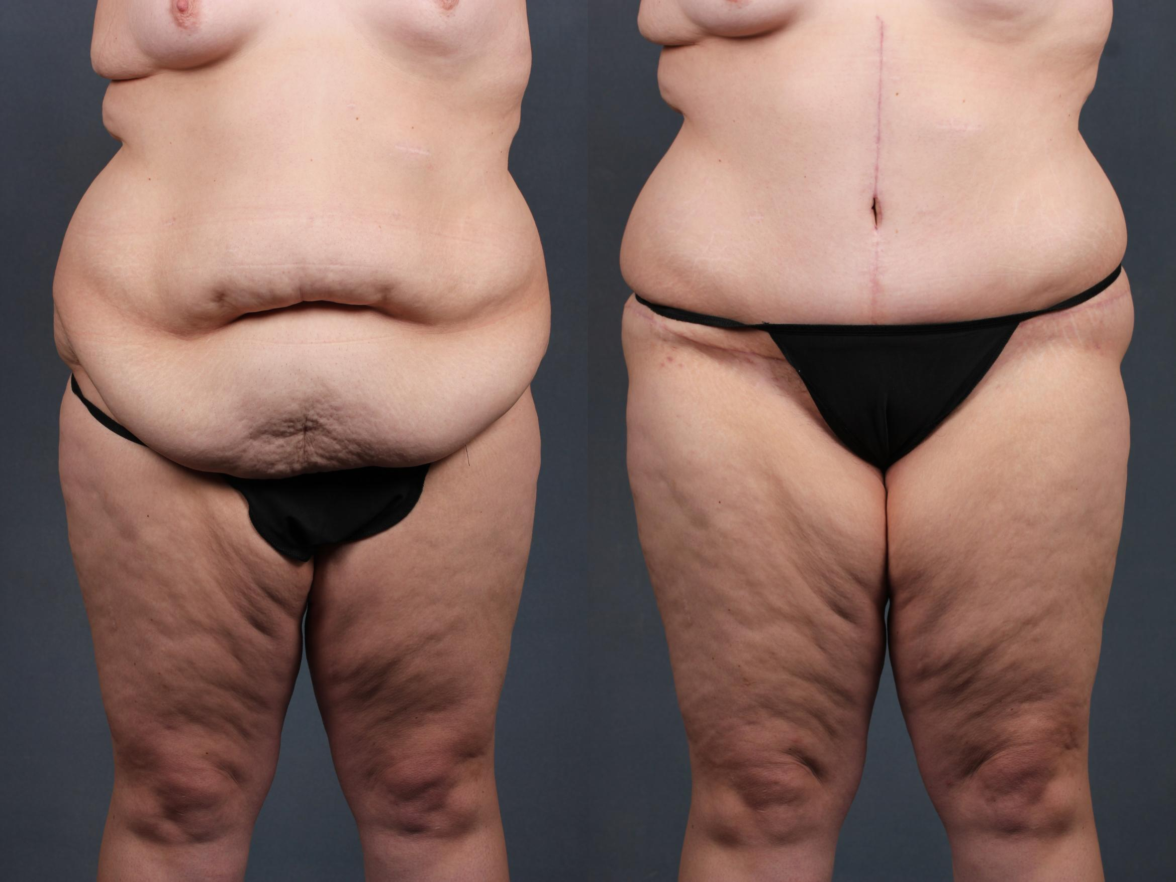 Tummy Tuck Before and After Photo Gallery   Louisville & Lexington ...
