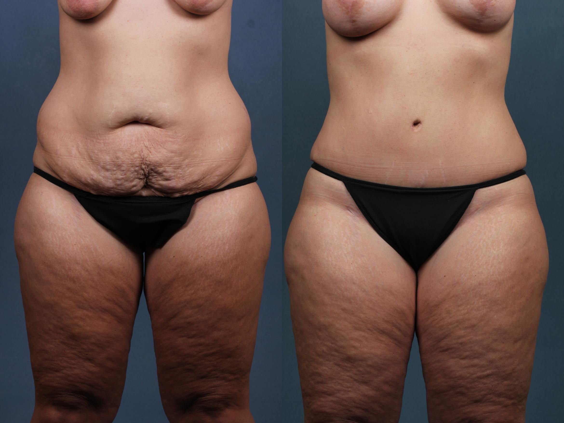 Tummy Tuck Before After Photo Gallery Louisville Ky Caloaesthetics Plastic Surgery Center