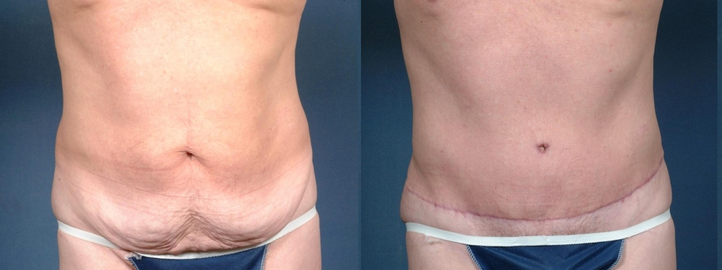 Tummy Tuck Case 721 Before & After Front | Louisville & Lexington, KY | CaloAesthetics® Plastic Surgery Center