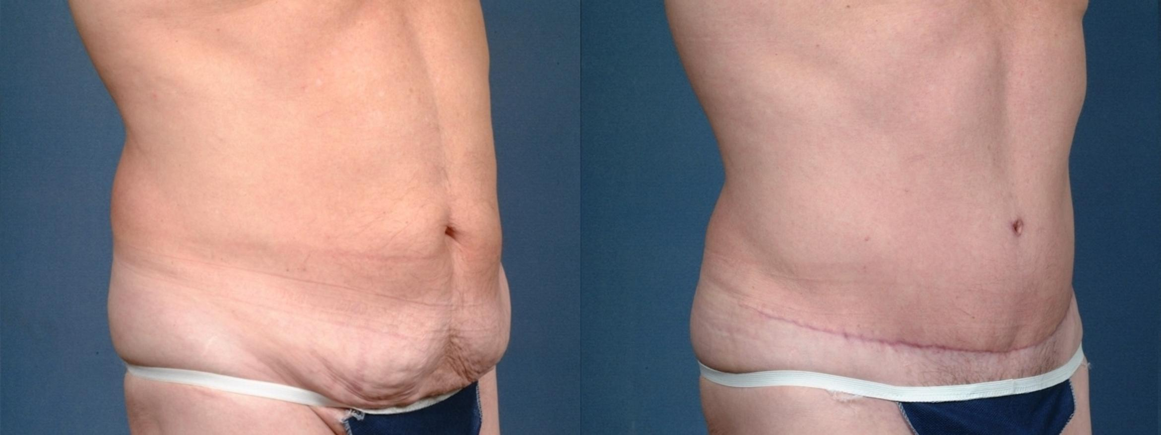 Tummy Tuck Case 721 Before & After Left Oblique | Louisville & Lexington, KY | CaloAesthetics® Plastic Surgery Center