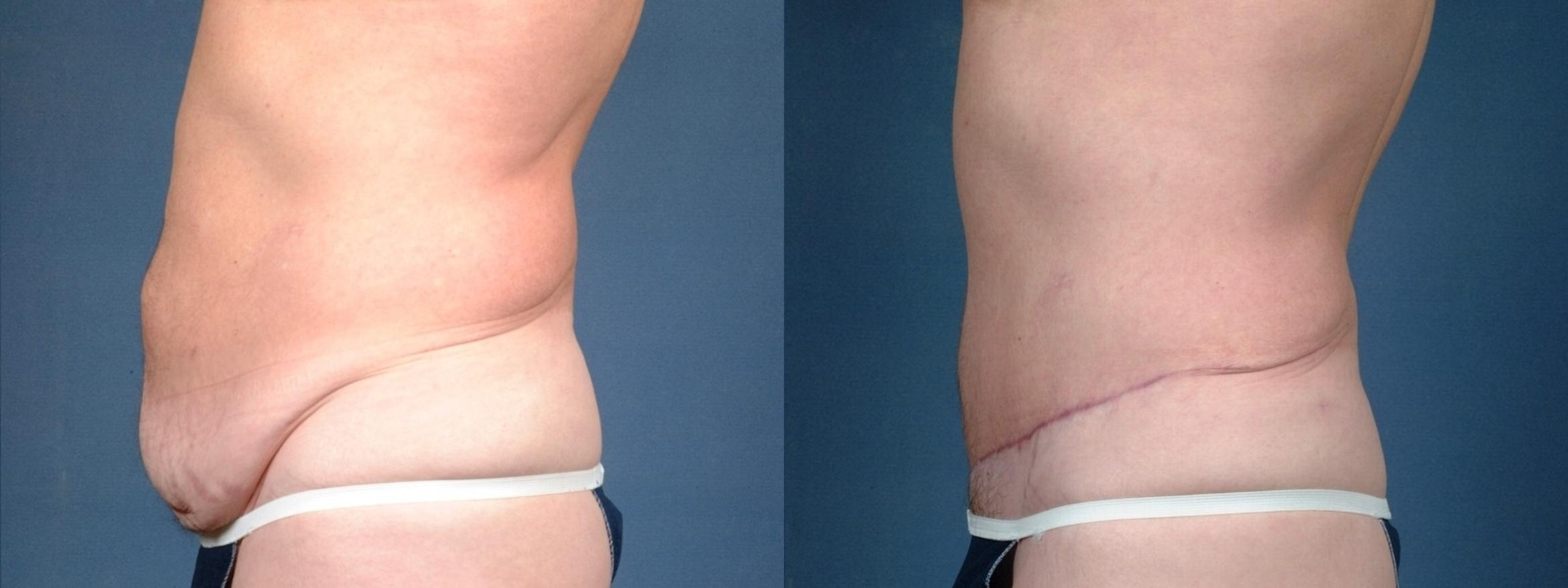 Tummy Tuck Case 721 Before & After Left Side | Louisville & Lexington, KY | CaloAesthetics® Plastic Surgery Center